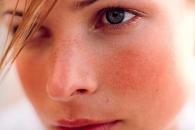 trattamento viso pelli sensibili centro estetico mia estetica roma policlinico università la sapienza